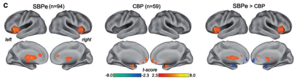 brain_latitude